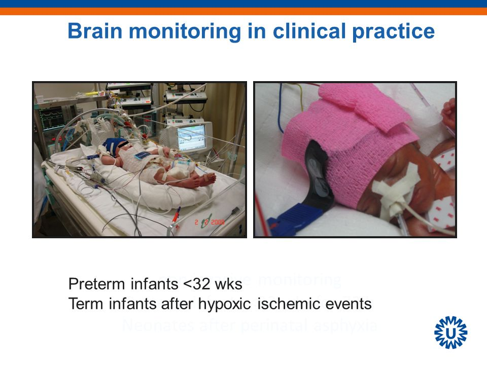 non invasive monitoring Preterm infants <32 wks for 72 h Neonates after perinatal asphyxia Brain monitoring in clinical practice Preterm infants <32 wks Term infants after hypoxic ischemic events