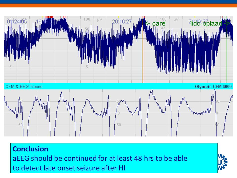Conclusion aEEG should be continued for at least 48 hrs to be able to detect late onset seizure after HI
