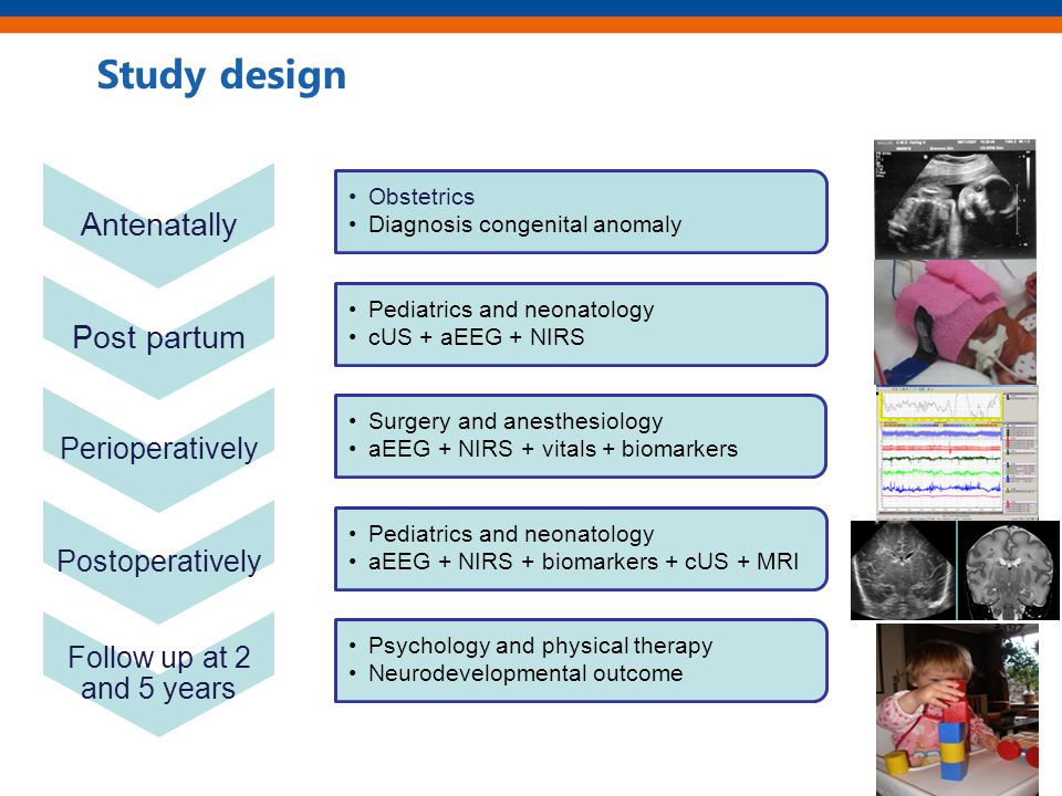 Study design Antenatally Obstetrics Diagnosis congenital anomaly Post partum Pediatrics and neonatology cUS + aEEG + NIRS Perioperatively Surgery and anesthesiology aEEG + NIRS + vitals + biomarkers Postoperatively Pediatrics and neonatology aEEG + NIRS + biomarkers + cUS + MRI Follow up at 2 and 5 years Psychology and physical therapy Neurodevelopmental outcome