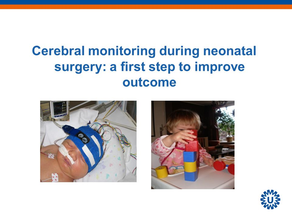Cerebral monitoring during neonatal surgery: a first step to improve outcome