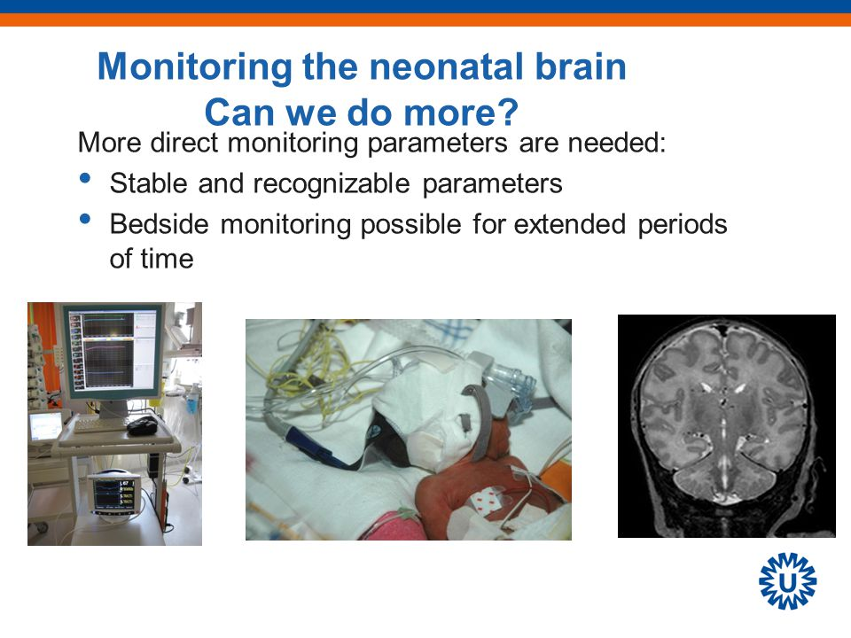 More direct monitoring parameters are needed: Stable and recognizable parameters Bedside monitoring possible for extended periods of time Monitoring the neonatal brain Can we do more