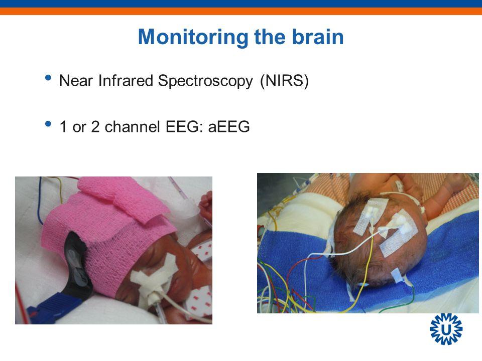 Victor et al : Pediatr 2005 Ventilation: pCO2