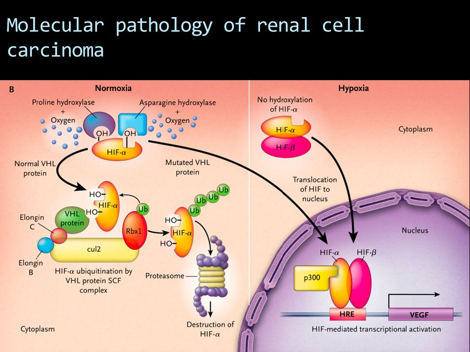 Molecular pathology of renal cell carcinoma
