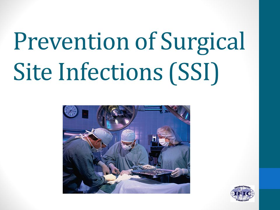 Prevention of Surgical Site Infections (SSI)