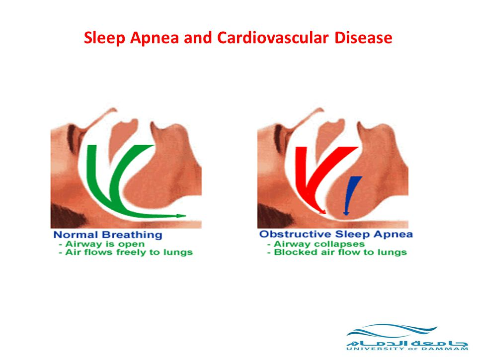 Central Sleep Apnea In HF Figure 2.