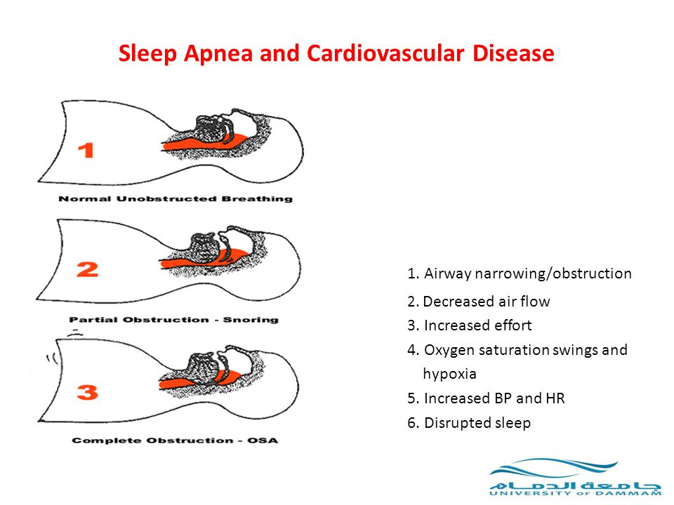 OSA and Hypertension How to treat it.