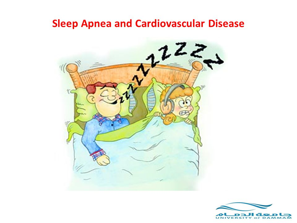 Sleep Apnea and Cardiovascular Disease OSA and Cardiovascular disease: There is a clear association between OSA and cardiovascular disease Higher incidence of adverse cardiovascular events in untreated patients with OSA Postgrad Med J 2008; 84:15-22 SLEEP 2007;30(3):291-304 CHEST 2008; 133:793-804 Proc Am Thorac Soc 2008; 5:200-206