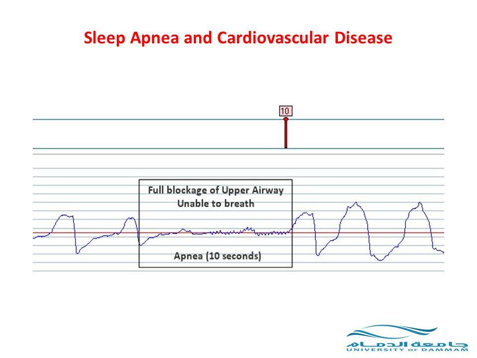 OSA and Cardiac Arrhythmias