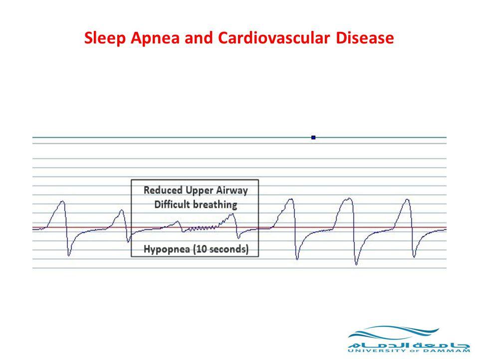 Abnormal heart rhythms have been associated with OSA 1983 Guilleminault et al.: – 400 pts with OSA – 48% had cardiac arrhythmias at night – 2% sustained VT, 11% sinus arrest, 8% AV block, 19% PVC Postgrad Med J 2008; 84:15-22