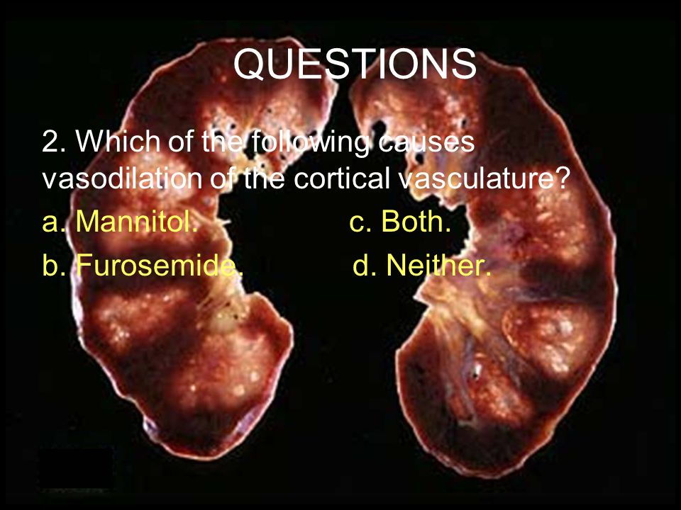 QUESTIONS 1. The risk of development of acute renal failure after cardiac surgery is highest in: a.