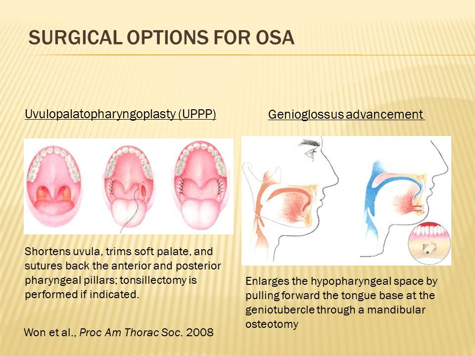 SURGICAL OPTIONS FOR OSA Uvulopalatopharyngoplasty (UPPP) Shortens uvula, trims soft palate, and sutures back the anterior and posterior pharyngeal pi