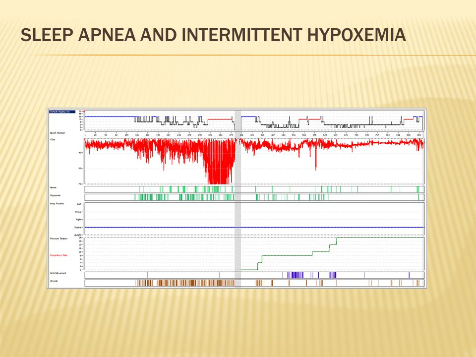 SLEEP APNEA AND INTERMITTENT HYPOXEMIA