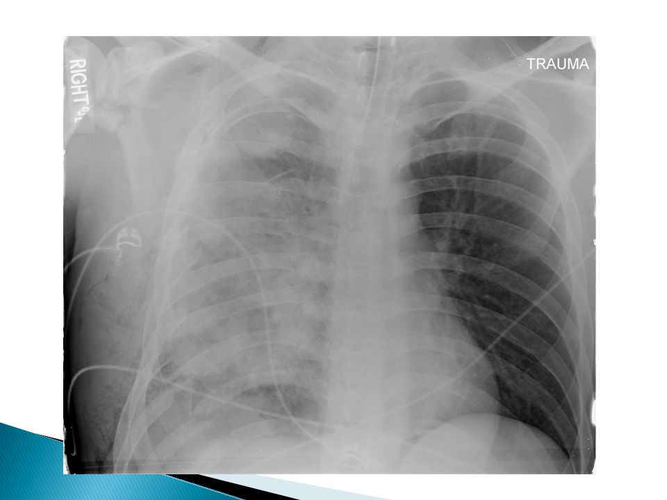 AdvantagesDisadvantages  Increased functional residual capacity (FRC), lung compliance, vital capacity  Remain awake – pulmonary toilet relative contraindicated: Spine fracture High rib fractures Sedated/intubated patients Cause hypotension Infection – rare Hematoma high block – respiratory insufficiency Narcotic component Nausea/vomiting