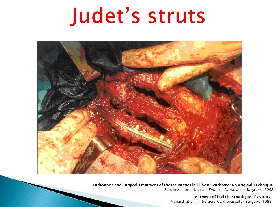 Treatment of flail chest with Judet's struts. Menard et al.