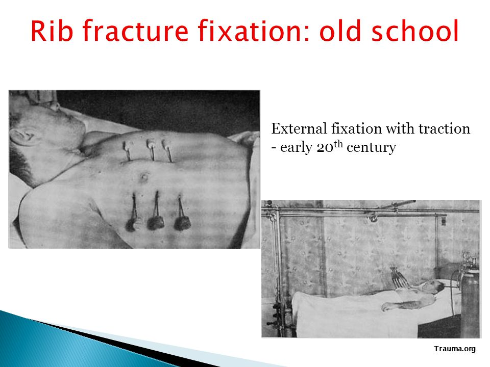 Trauma.org External fixation with traction - early 20 th century