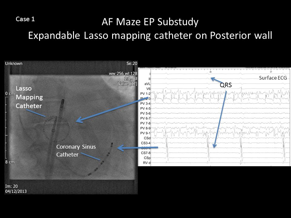 AF Maze EP Substudy Expandable Lasso mapping catheter on Posterior wall Lasso Mapping Catheter Coronary Sinus Catheter QRS Surface ECG Case 1