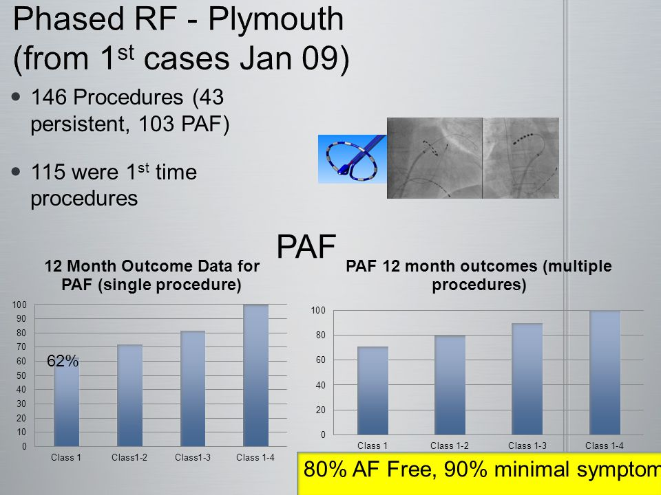 Catheter Ablation Phased RF – Plymouth  146 Procedures (43 persistent, 103 PAF)  115 were 1 st time procedures 71% AF Free, 80% minimal symptoms Persistent (Continuous AF < 1 year) 55% 62%