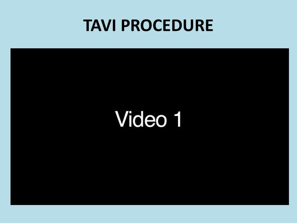 TAVI PROCEDURE