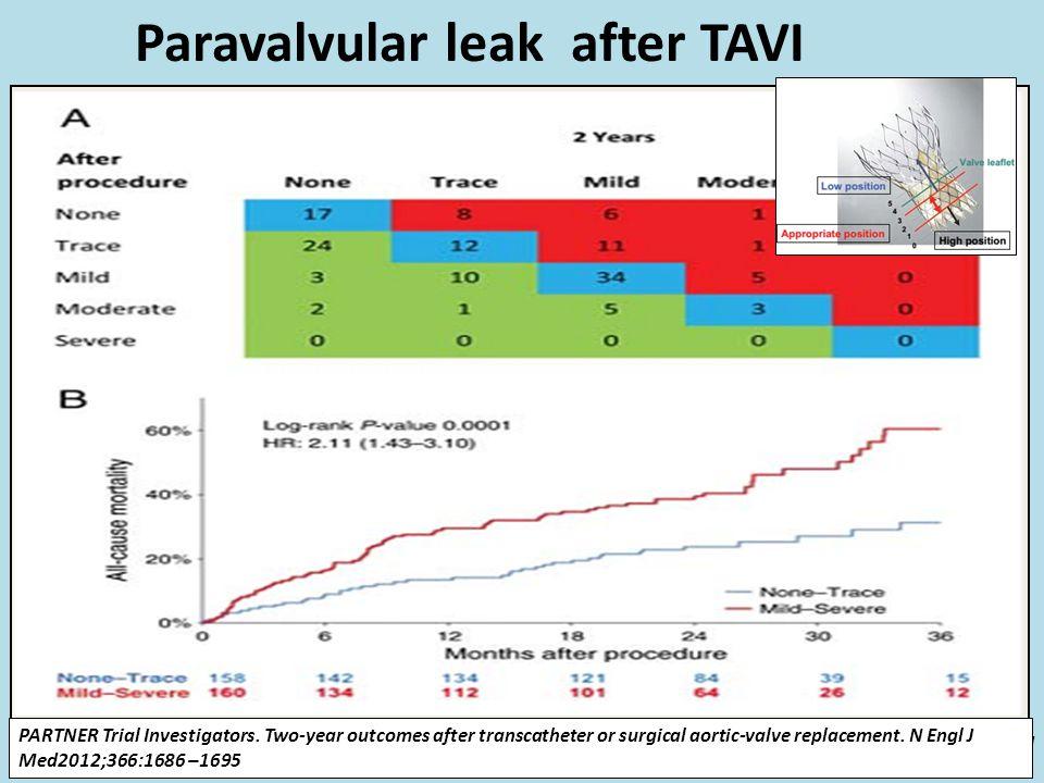 Paravalvular leak after TAVI PARTNER A: >2+ AR in 7% TAVI vs 1.9% SAVR (predictor of higher mortality) Core-Valve study(2014) : 6% had >2+ AR Atleast