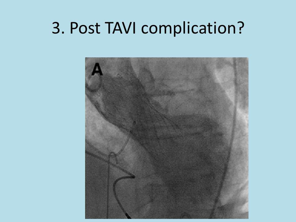 3. Post TAVI complication?
