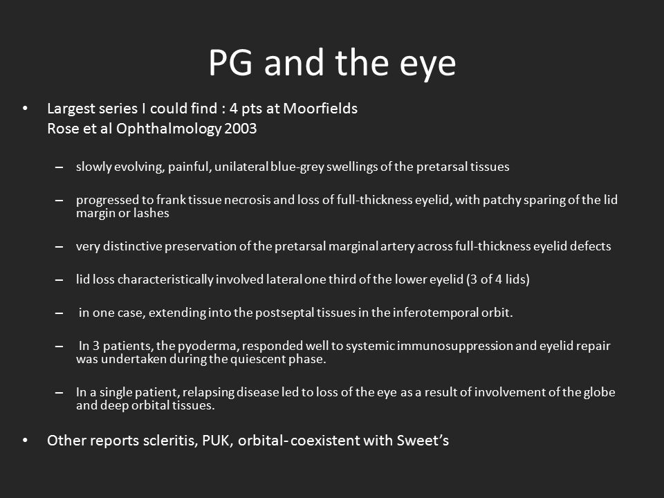 PG and the eye Largest series I could find : 4 pts at Moorfields Rose et al Ophthalmology 2003 – slowly evolving, painful, unilateral blue-grey swelli