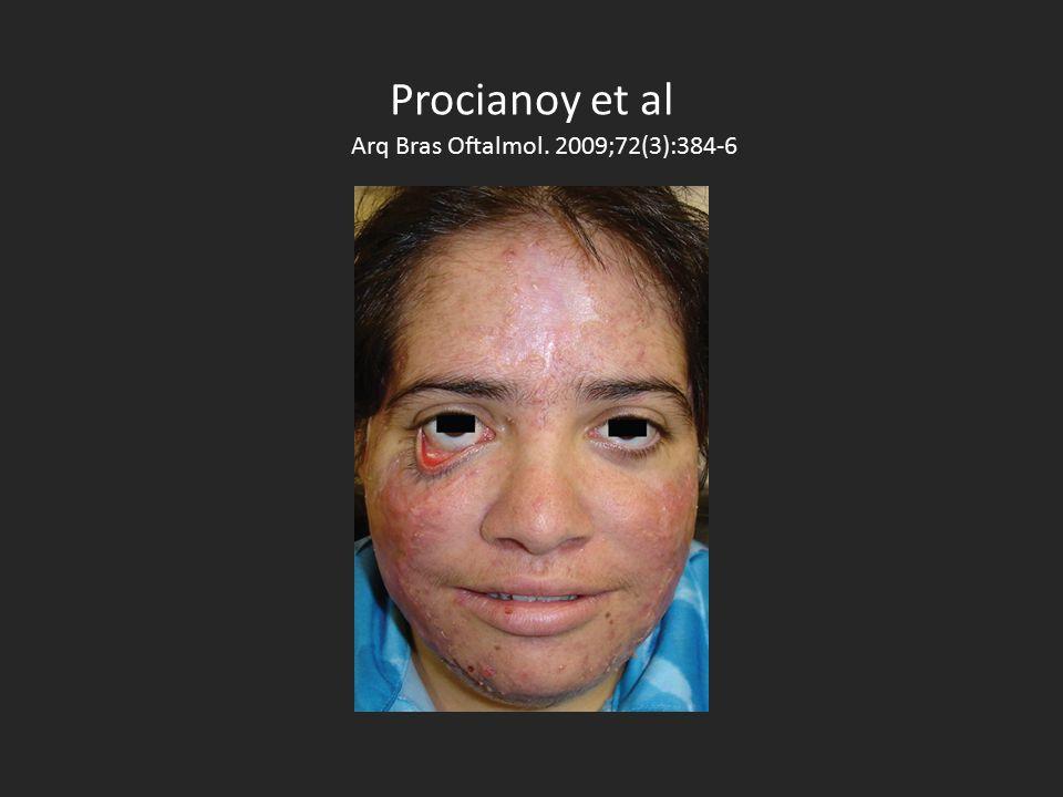 Procianoy et al Arq Bras Oftalmol. 2009;72(3):384-6