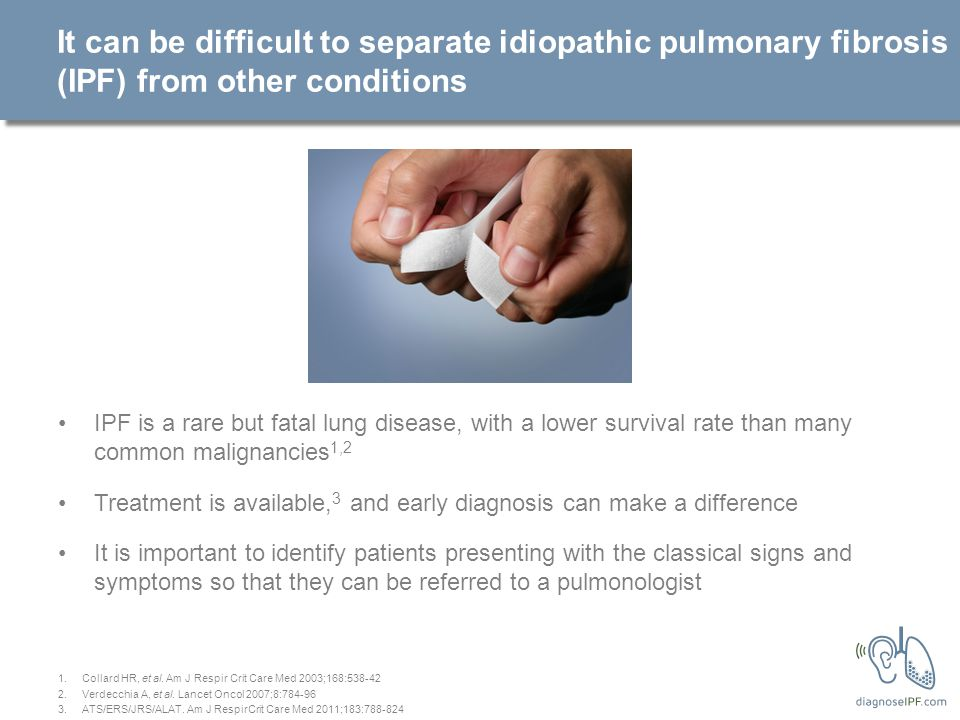 It can be difficult to separate idiopathic pulmonary fibrosis (IPF) from other conditions IPF is a rare but fatal lung disease, with a lower survival rate than many common malignancies 1,2 Treatment is available, 3 and early diagnosis can make a difference It is important to identify patients presenting with the classical signs and symptoms so that they can be referred to a pulmonologist 1.Collard HR, et al.