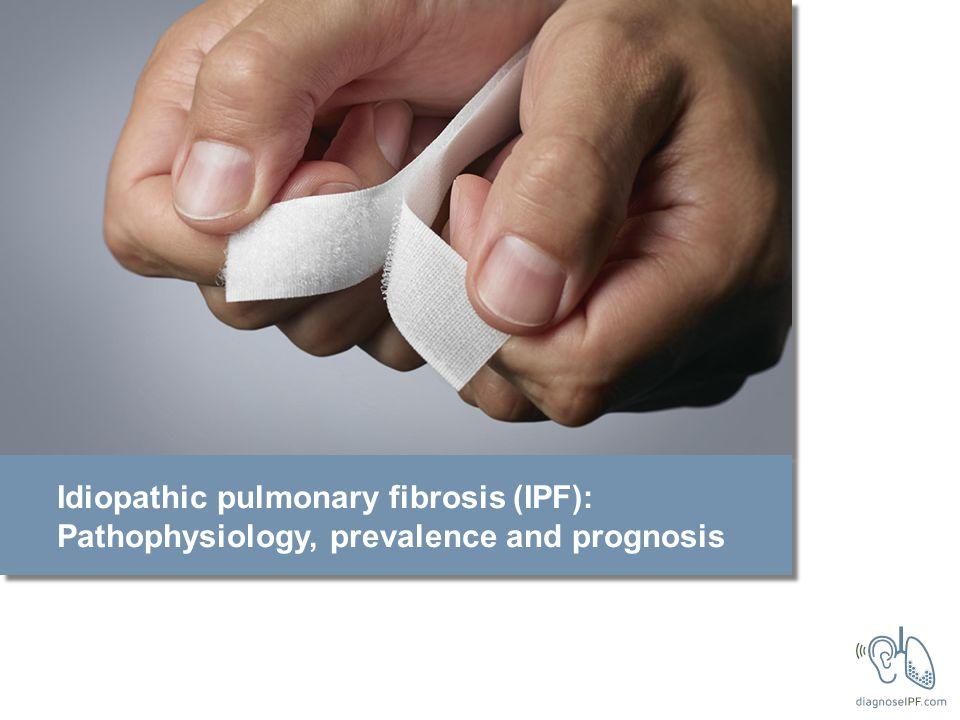 Idiopathic pulmonary fibrosis (IPF): Pathophysiology, prevalence and prognosis