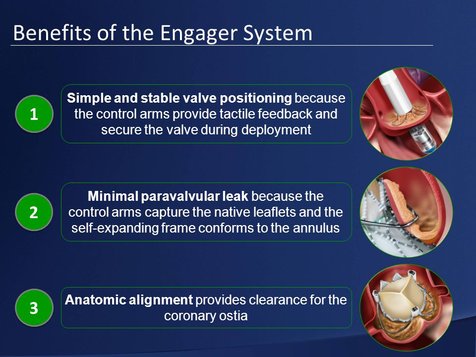 Benefits of the Engager System 1 1 Simple and stable valve positioning because the control arms provide tactile feedback and secure the valve during deployment 2 2 Minimal paravalvular leak because the control arms capture the native leaflets and the self-expanding frame conforms to the annulus 3 3 Anatomic alignment provides clearance for the coronary ostia