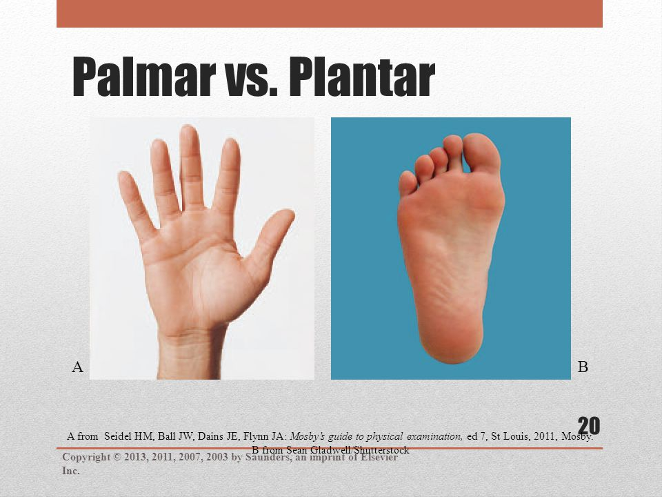 Palmar vs. Plantar Copyright © 2013, 2011, 2007, 2003 by Saunders, an imprint of Elsevier Inc. 20 A from Seidel HM, Ball JW, Dains JE, Flynn JA: Mosby