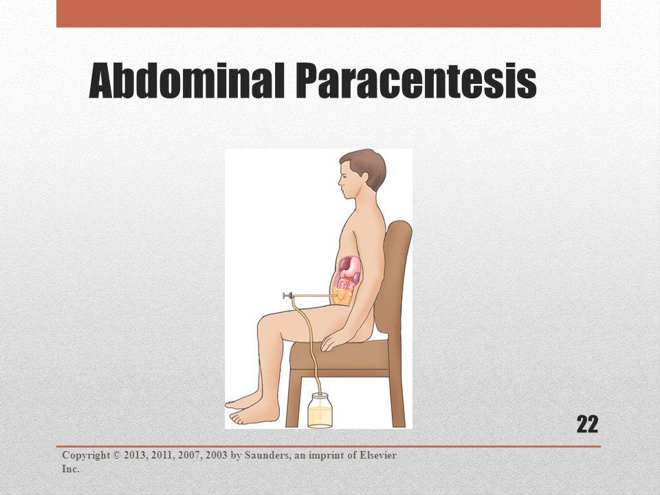 Abdominal Paracentesis Copyright © 2013, 2011, 2007, 2003 by Saunders, an imprint of Elsevier Inc.