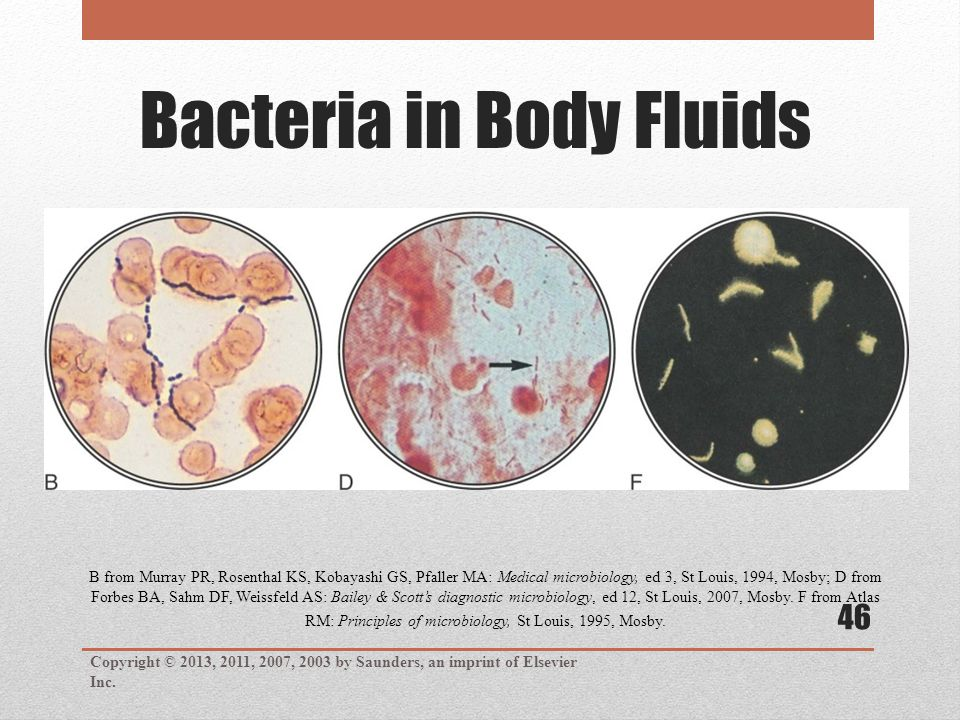 Bacteria in Body Fluids Copyright © 2013, 2011, 2007, 2003 by Saunders, an imprint of Elsevier Inc. 46 B from Murray PR, Rosenthal KS, Kobayashi GS, P