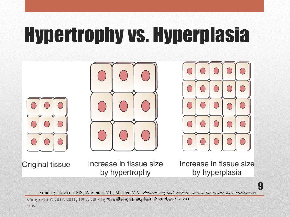 Hypertrophy vs.