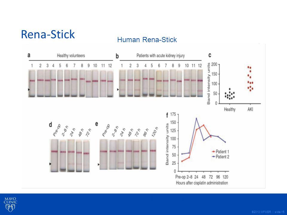 ©2013 MFMER | slide-15 Rena-Stick Human Rena-Stick Vaidya et al, Kidney International (2009) 76, 108–114