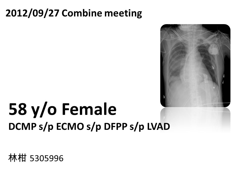 2012/09/27 Combine meeting 58 y/o Female DCMP s/p ECMO s/p DFPP s/p LVAD 林柑 5305996