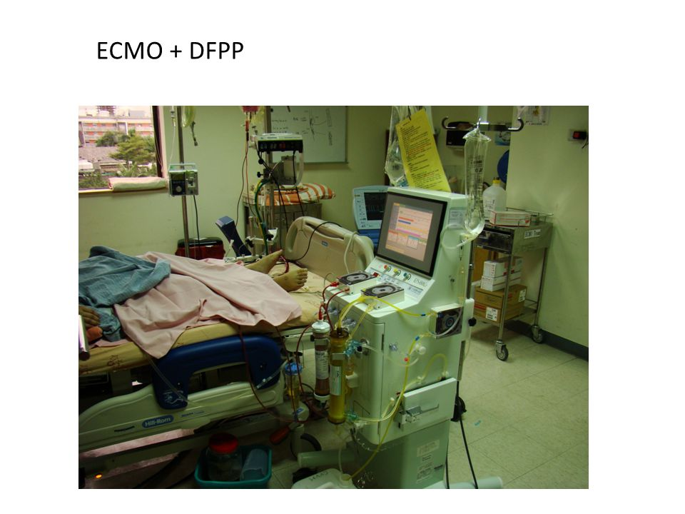 ECMO + DFPP