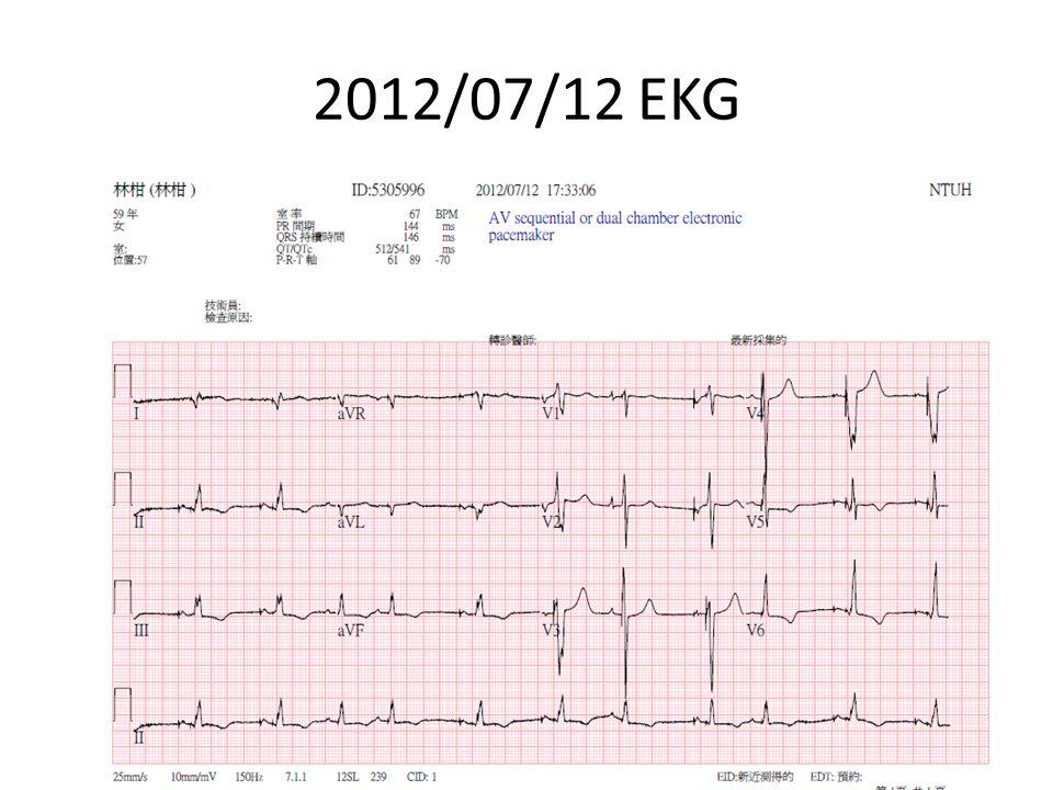 2012/07/16 Cardiac Echo LVEF=14.6% global hypokinesia Moderate MR, TR, PR, Pulmonary Hypertension TRPG=50.7