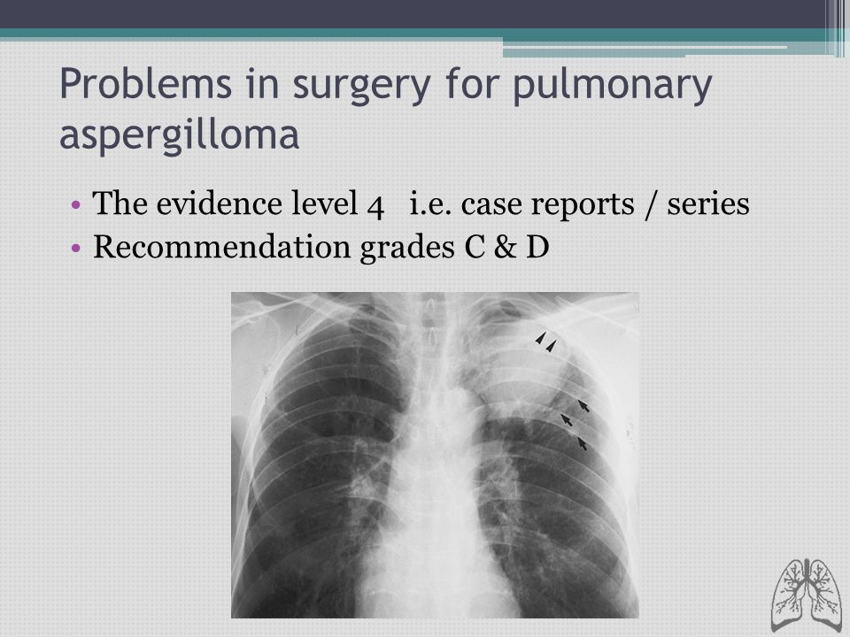 Problems in surgery for pulmonary aspergilloma The evidence level 4 i.e. case reports / series Recommendation grades C & D