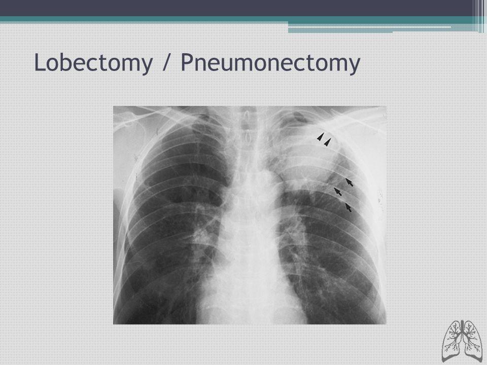 Lobectomy / Pneumonectomy