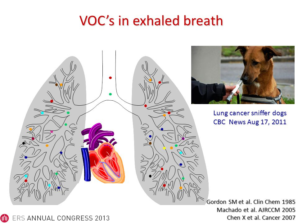 VOC's in exhaled breath Lung cancer sniffer dogs CBC News Aug 17, 2011 Gordon SM et al.