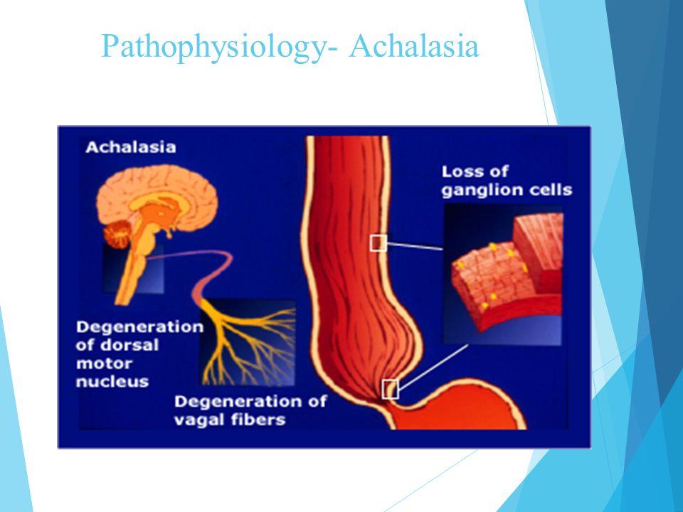 Pathophysiology- Achalasia