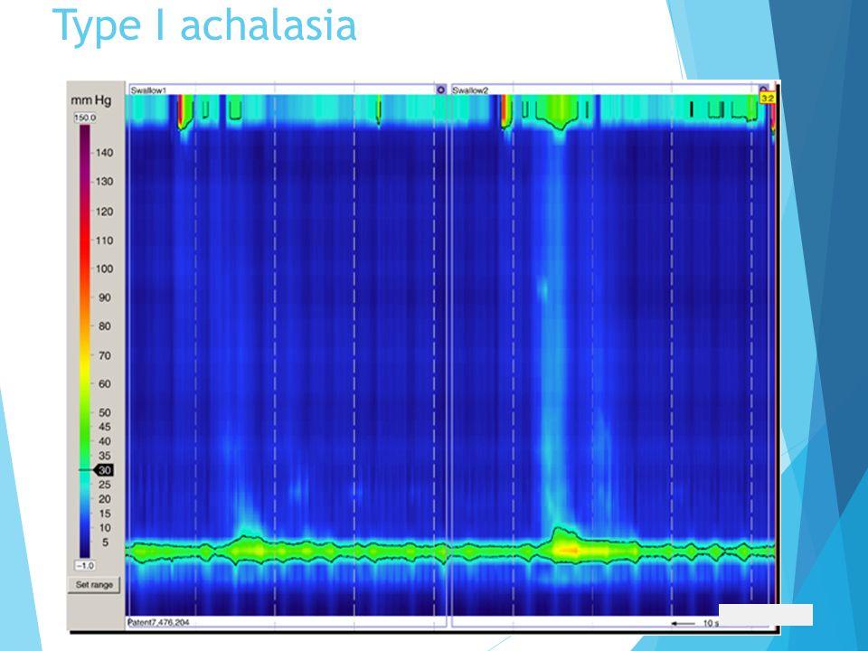 Type I achalasia