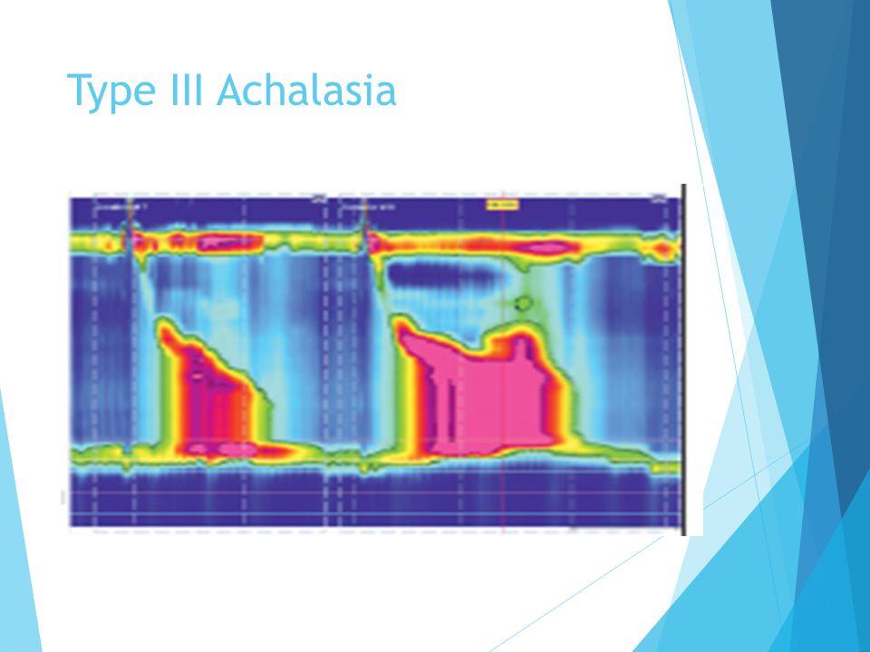 Type III Achalasia