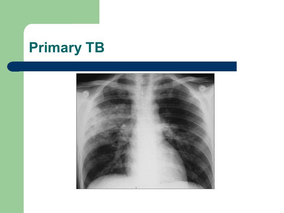 Primary TB