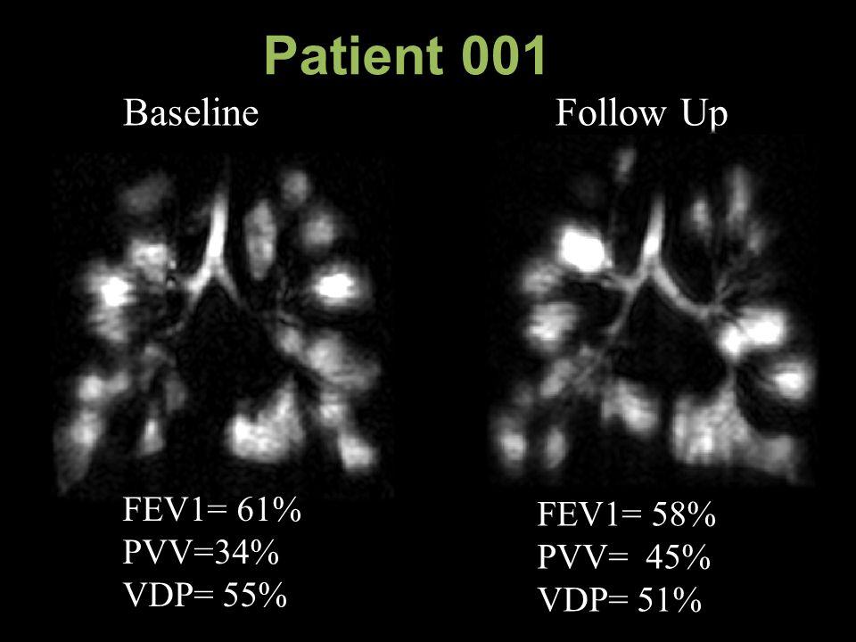 Patient 001 Baseline Follow Up FEV1= 61% PVV=34% VDP= 55% FEV1= 58% PVV= 45% VDP= 51%
