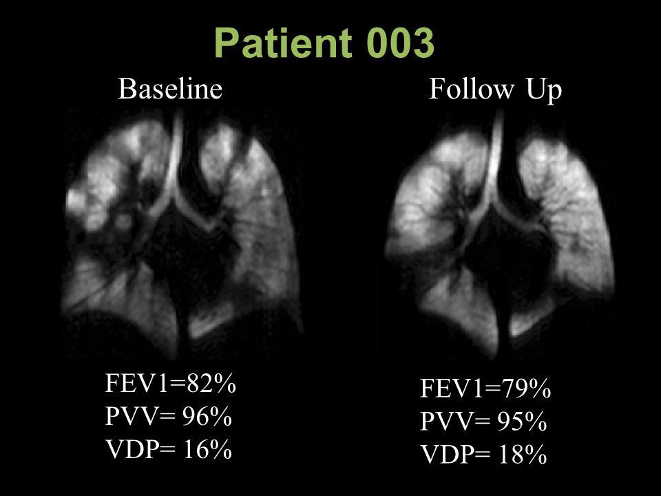 Patient 003 Baseline Follow Up FEV1=79% PVV= 95% VDP= 18% FEV1=82% PVV= 96% VDP= 16%