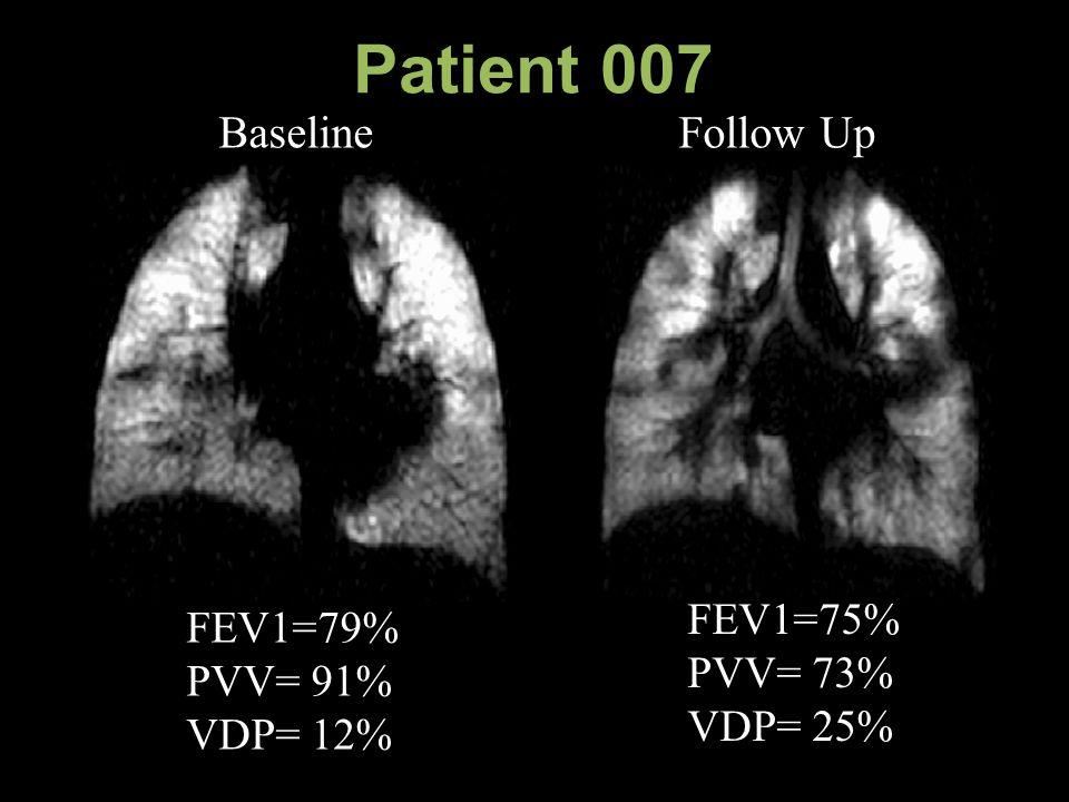 Patient 007 Baseline Follow Up FEV1=75% PVV= 73% VDP= 25% FEV1=79% PVV= 91% VDP= 12%