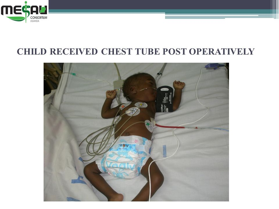 CHILD RECEIVED CHEST TUBE POST OPERATIVELY