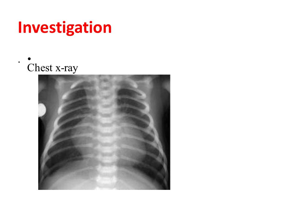 Investigation. Chest x-ray