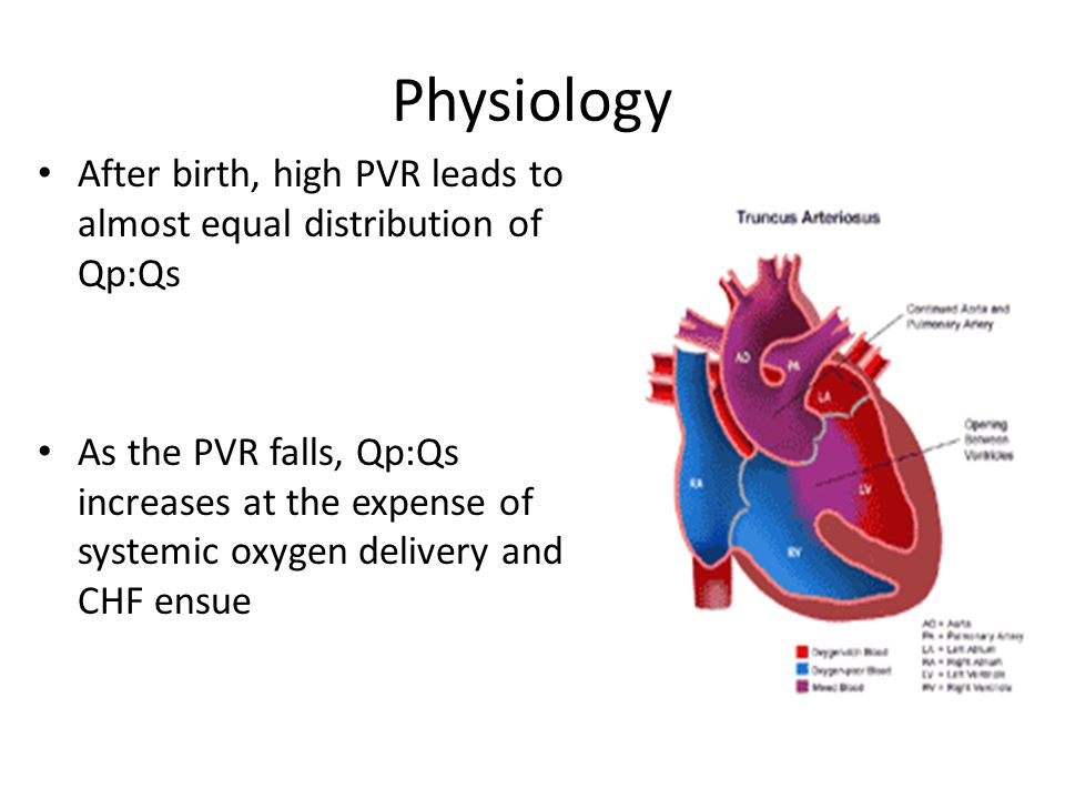 Physiology After birth, high PVR leads to almost equal distribution of Qp:Qs As the PVR falls, Qp:Qs increases at the expense of systemic oxygen delivery and CHF ensue